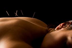 Meridian Regulatory Acupuncture